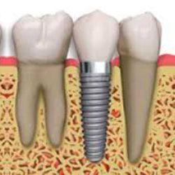 implant_ustu_sabit_gorsel2